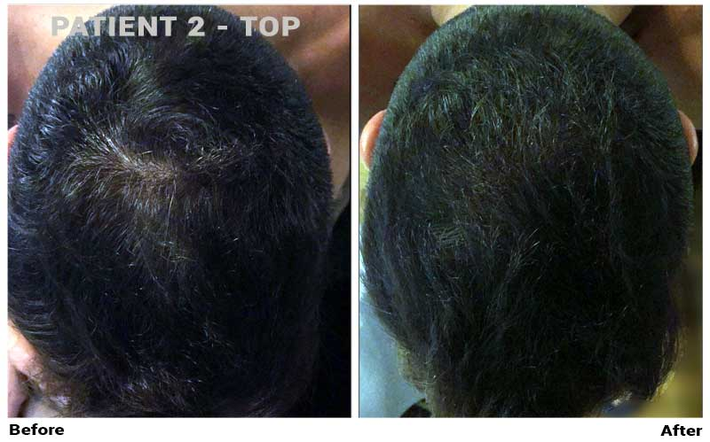 topical finasteride patient2 top crown results