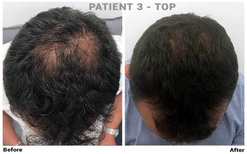 topical finasteride patient3 top crown results