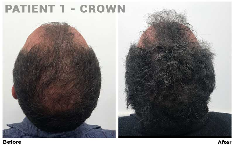 Results With Topical Finasteride Has It Worked For Anyone Hairlosstalk Forums