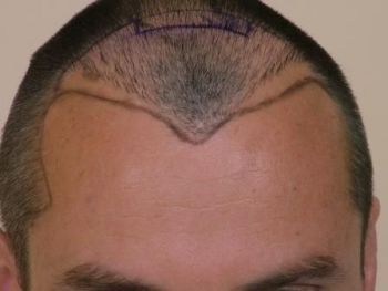 hairlinedesign