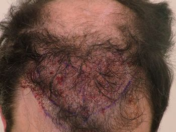 after surgery hairline