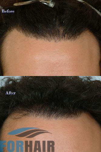 before and after the hairline repair