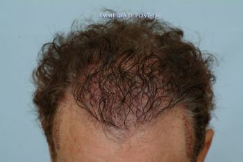 hairline_postop_159