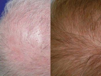 patient-mbr-before-after-crown