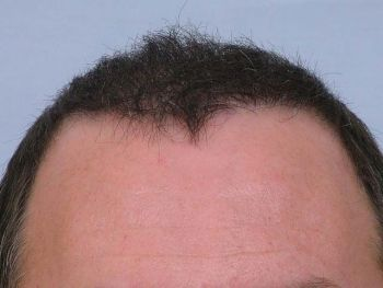 after-with-dry-hair--hairline