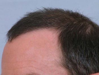 after-with-dry-hair-left-side