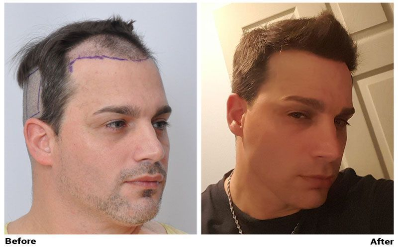 Before and after right