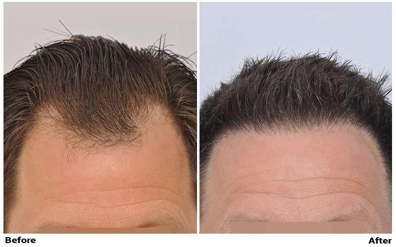 patient-nnb-before-after-front-wet