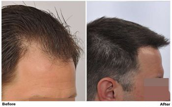 patient-nnb-before-after-right-wet