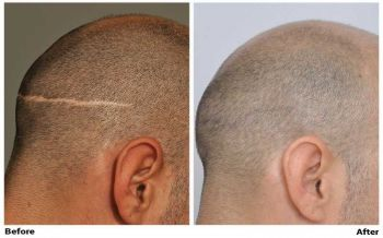 before-after-fue-scar-right-side