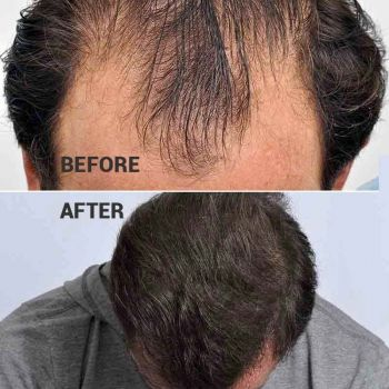 yyu-before-after-main