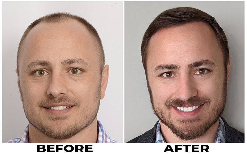 patient-mts-before-after-front