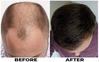 patient-mts-before-after-top2