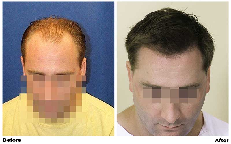 wassup-hair-transplant-photo-top