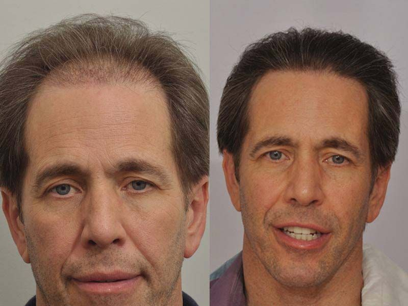 patient-ppp-before-after-full-face2