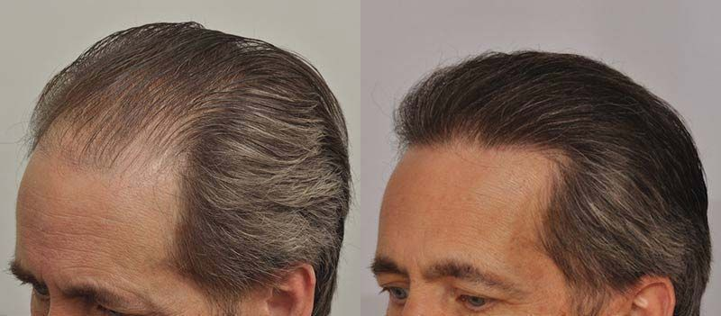 patient-ppp-before-after-left-side