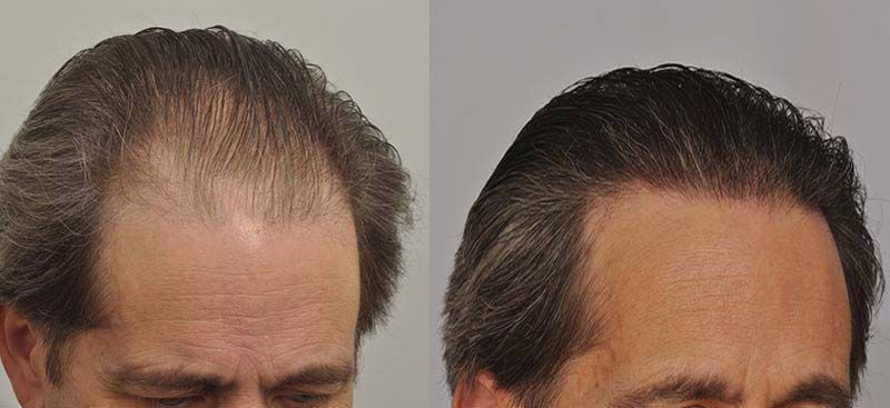 patient-ppp-before-after-right-wet-hair