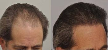 patient-ppp-before-after-right-side