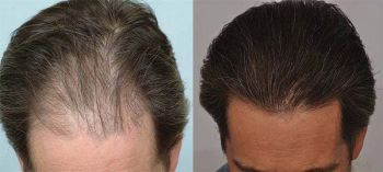 patient-ppp-before-after-top-dry-hair