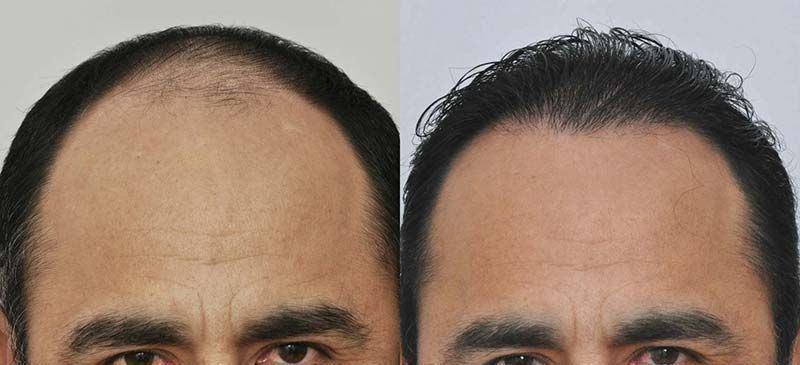 patient-vvc-before-after-front-wet