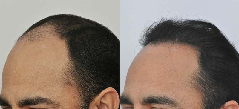 patient-vvc-before-after-left