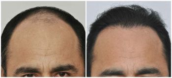 patient-vvc-before-after-front