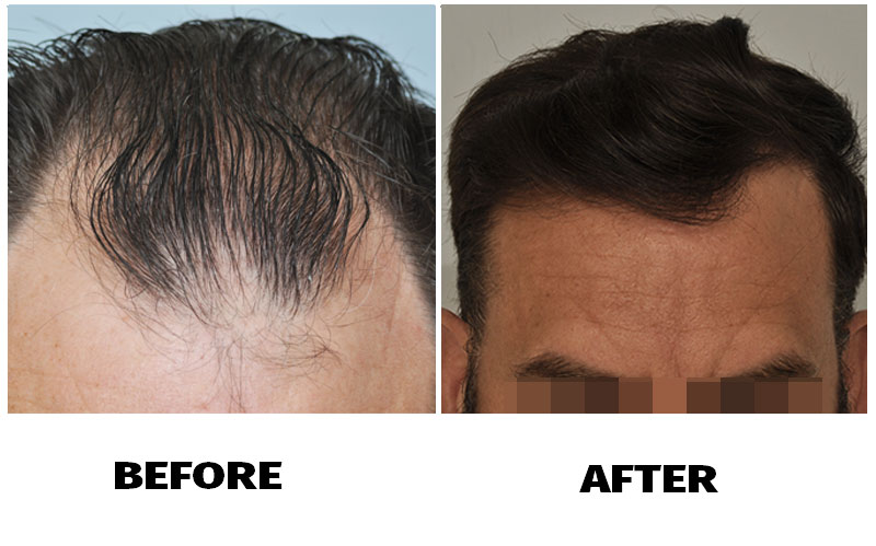 patient-smp-before-after-front-hairline
