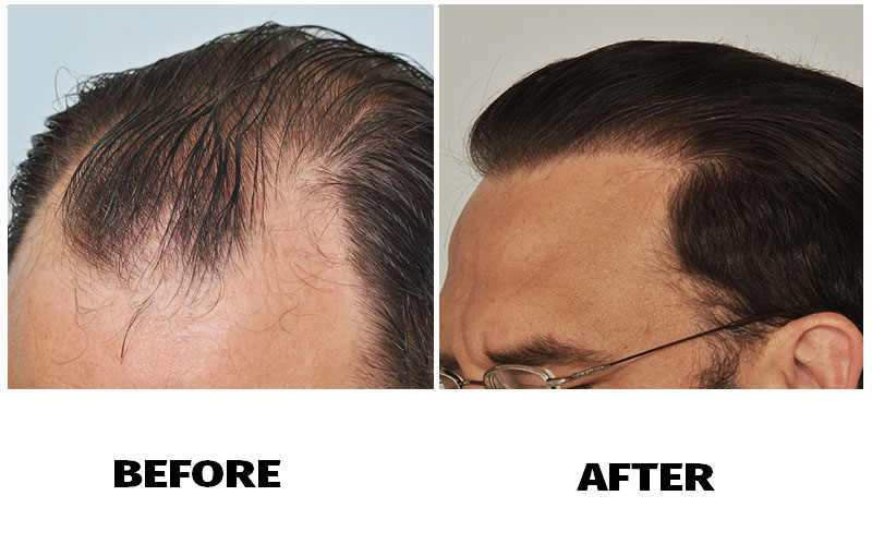 patient-smp-before-after-left-side-wet-hair
