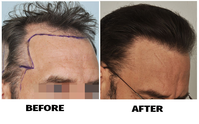 patient-smp-before-after-right-side-close-hairline