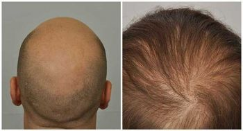 patient-jmc-before-after-crown