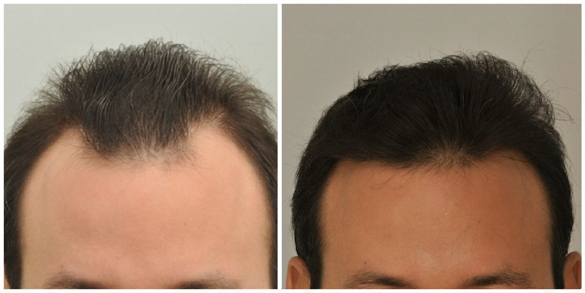 patient-gnn-before-and-after-front