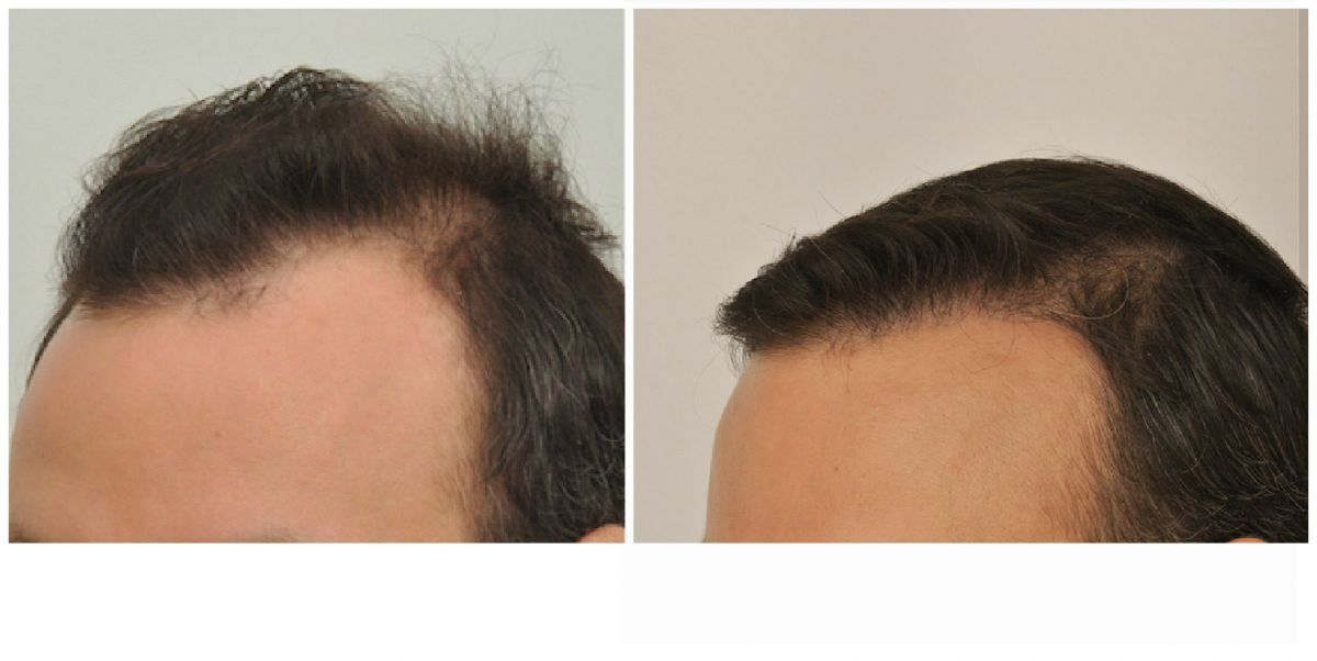 patient-gnn-before-and-after-left-1