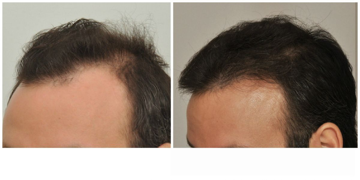 patient-gnn-before-and-after-left-2