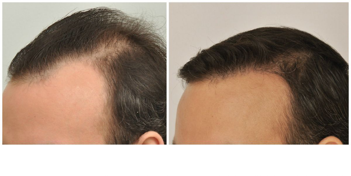 patient-gnn-before-and-after-left-4
