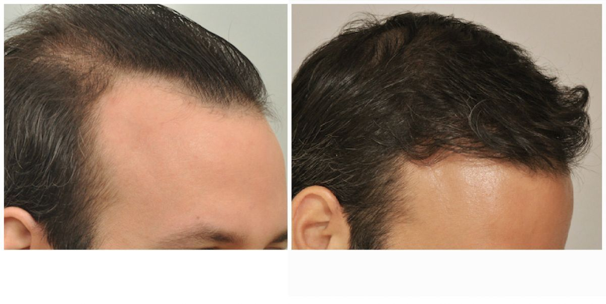patient-gnn-before-and-after-right-2