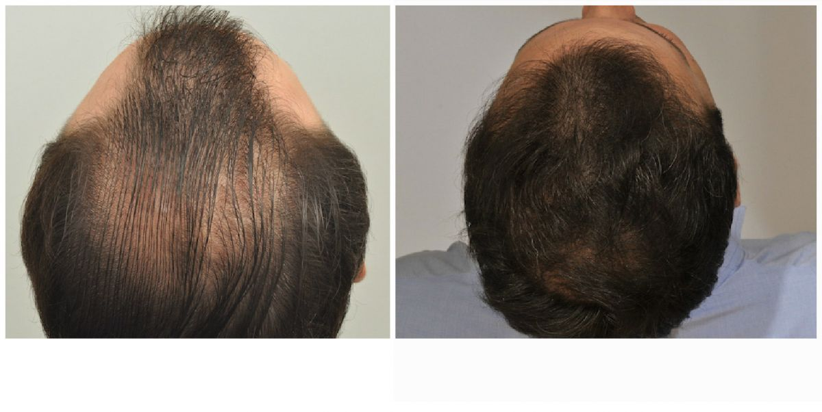 patient-gnn-before-and-after-top-back