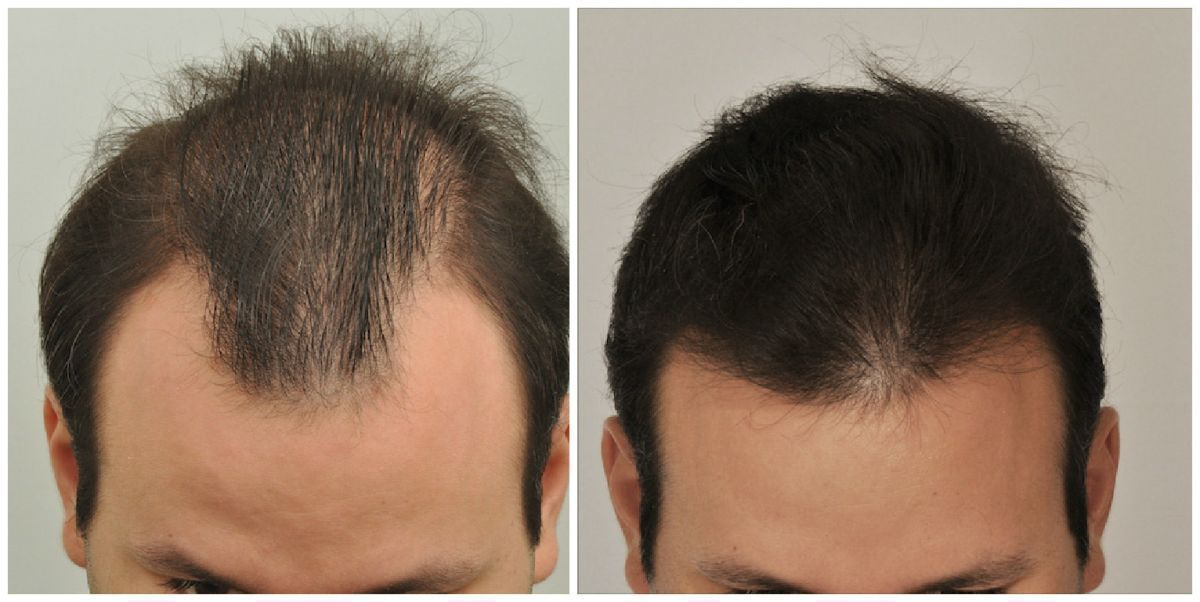 patient-gnn-before-and-after-top2