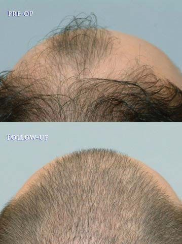 patient-baw-before-and-after-top-back