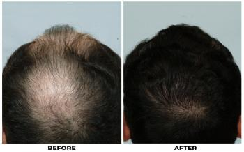 baw-before-after-photo-crown