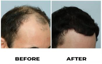 baw-before-after-photo-right