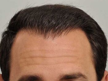 patient_rrw_after_natural_hairline