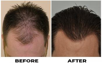 patient-rss-before-after-photo-top-wet