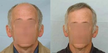 patient-esh-before-after-front