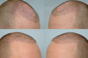 before and after 2000 cit both shaved