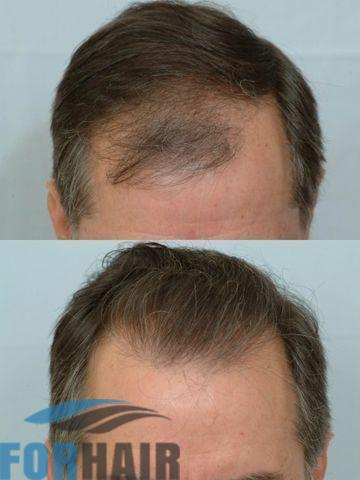 before and after 1400 cit front