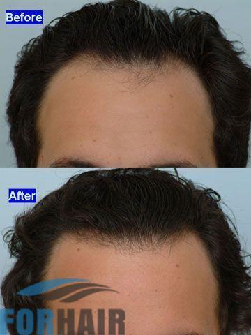 before and after 1100 grafts front