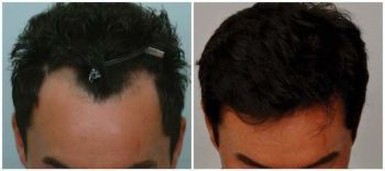 patient-jaa-before-after-comp-top-dry