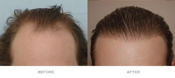 before-and-after-1700-grafts-comparison