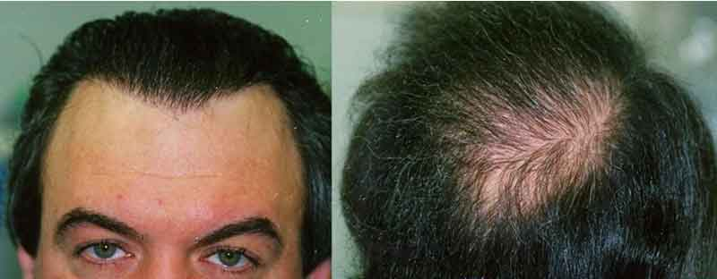 hair mass index transferred after