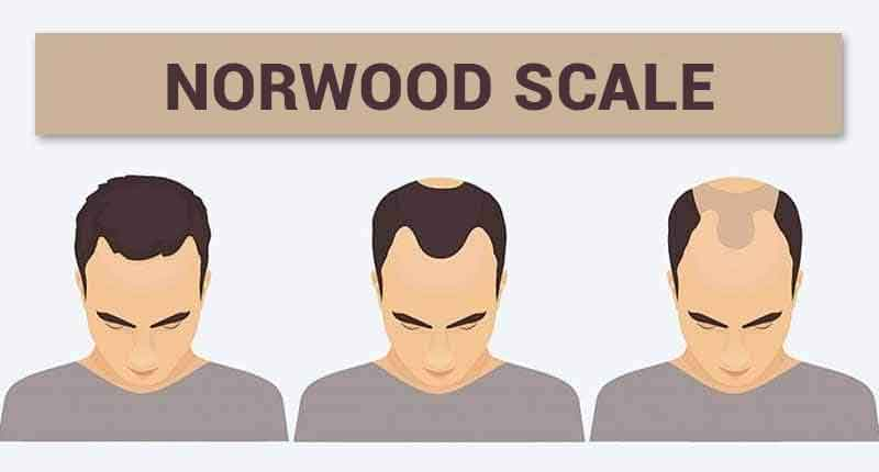 norwood scale hair loss stages